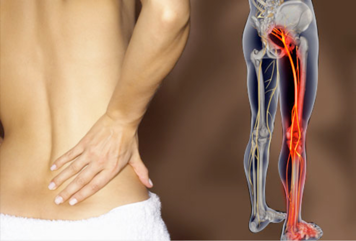 Louise O'Rourke Physiotherapy - Physio Manual Therapy Treatments for back pain - Citywest Dublin