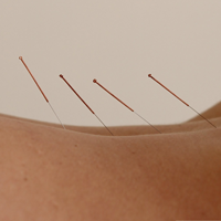Louise O'Rourke Physiotherapy - Sports Physio- Back Pain - Dry Needling - Acupuncture - Dublin